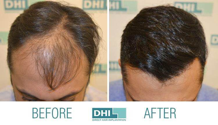 Direct Hair Implantation!   Unlike with other hair transplant methods – such as FUE and FUT (Strip) - with Direct Hair Implantation, there is no need for reception incisions or holes on the recipient area. Hair follicles are implanted directly to the recipient area using the patented DHI implanter tool. We guarantee safety, maximum density and 100% natural results every time!   Book your appointment with DHI Hair Transplant Clinics in Kochi and DHI Hair Transplant Clinics in Kozhikode.