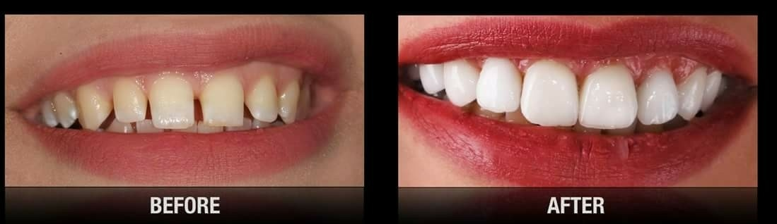 Looking for treatment of your front teeth. We offer advance dental treatment for front teeth with bonding and veneers. Front teeth spacing, chipped teeth and severe discolored teeth can be treated with Dental Veneers and laminates. Know more about smile designing only at Dr Shah's Dental Square in Gotri and New Alkapuri Baroda  www.dentistinvadodara.com