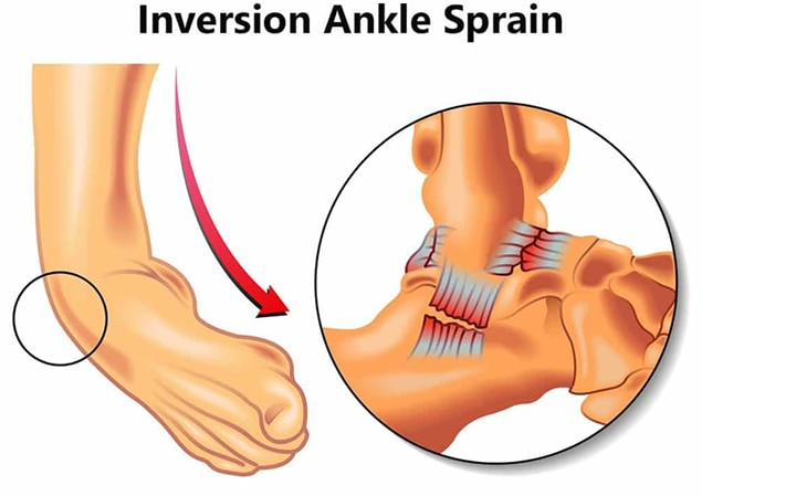 Allocare  physiotherapy near you got an accurate answer for the question you may have as  : what is physiotherapy and can physiotherapy help a sprained ankle ??   before we answer your question , let us  help you understand what is ankle sprain .  ankle sprains are common injuries that occur when the foot twists or turns beyond its normal range of movement . Ankle pain may feel like pain , swelling , trouble walking with the affected foot  Yeah .. Our therapists  may recommend a home- physical therapy or exercise  program to help prevent ankle sprain. it may include strength, flexibility, and balance exercise.  For more help  and information please visit   http://allocarephysiotherapy.com/ we also offer home physiotherapy at an affordable prices for all  physiotherapy needs and sports injuries. For more info visit us at http://allocarephysiotherapy.com/Allocare-physiotherapy-near-you-got-an-accurate-answer-for-the-question-you-may-have-as-what-is-physiotherapy-and-can-ph/b132