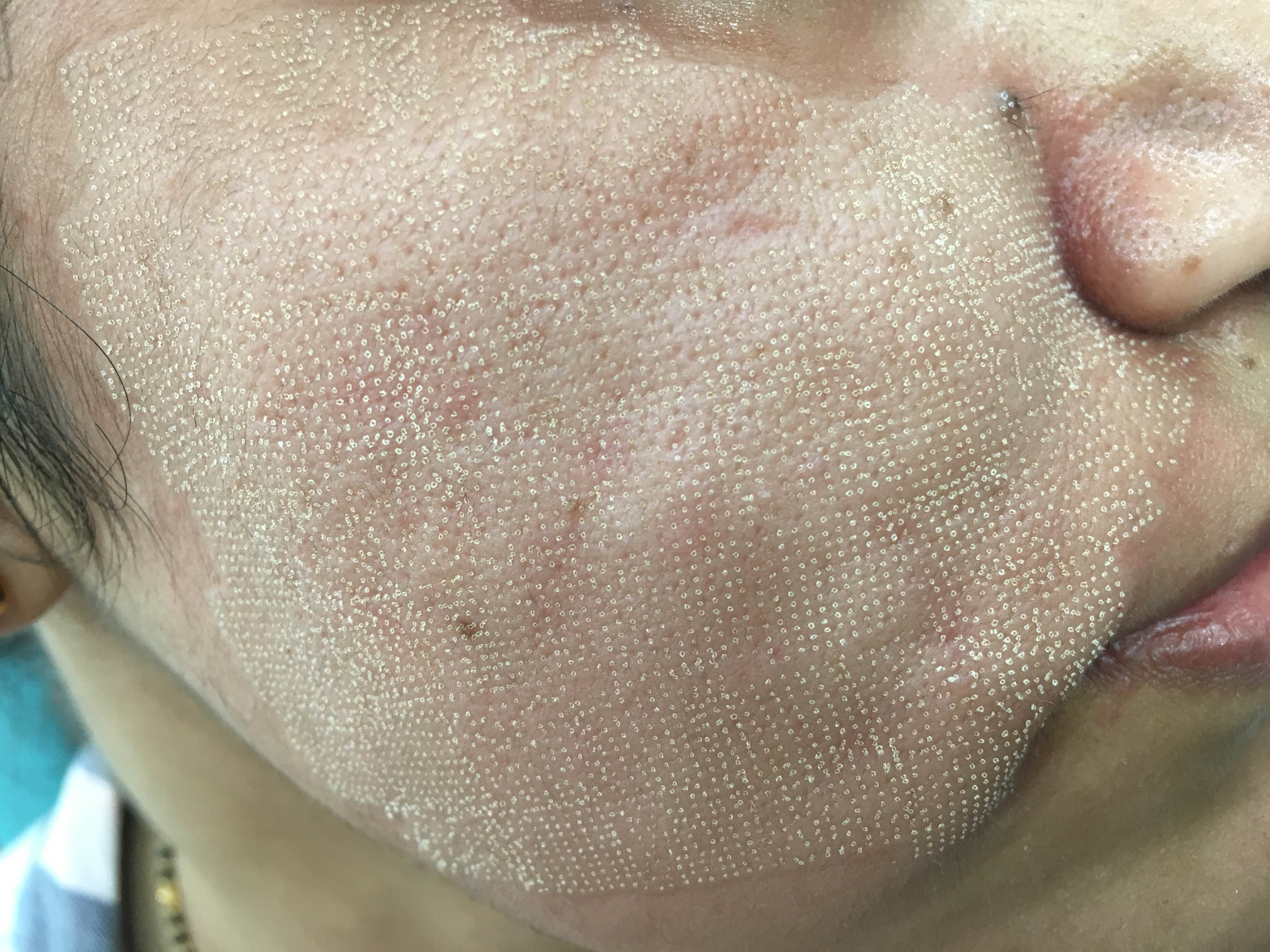 TYPICAL GRID  PATTERN  IMMEDIATELY AFTER FRACTIONAL CO2 LASER TREATMENT:<br/><br/>Dr Ashima Goel <br/>Parisa skin clinic, <br/>SECTOR 15D , CHD<br/>M -9780981403  <br/>www.parisadermatology.com<br/><br/>#fractionalCO2laser #laser #antiaging ##doctor #hope #prevent #care #protect #parisa #skinclinic #skinsolution #happiness #parisa #laser #cosmetic #chandigarh #skincare #dermatologist #BestDermatologistInChandigarh #bestdermatologistchandigarh<br/>#chandigarh #mohali #citybeautiful