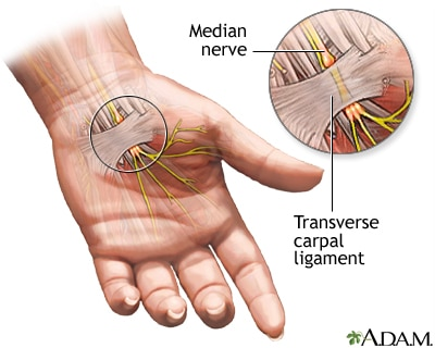 Allocare Physiotherapy near you got an accurate answer for the question you may have as : What is a Physiotherapy and can physiotherapy help a Carpal tunnel syndrome ??  Carpal tunnel syndrome :  Carpal tunnel syndrome affects arms, wrists and hands. It occurs when nerve that goes from forearm to palm of the hand (carpal tunnel) is squeezed/ pinched at wrist. Wrist and hand may become painful, weak or numb and these sensations may travel up arm.  Symptoms :  Symptoms may develop over time. burning, tingling or numbness in the hands and fingers. Fingers may feel numb and swollen, even if they aren't really swollen. Untreated can lead to lose in grip strength and feeling in finger tips.  Causes :  When pressure applied on nerves and tendons of carpal tunnel, carpal tunnel syndrome can occur. Injuries and trauma to wrist, like a sprain/ break, also can trigger condition.  Some inflammatory diseases like rheumatoid arthritis can be contributing factor.  Physiotherapy Treatment :  Physiotherapy treatment like Ultrasound can reduce pain and swelling. Hand and wrist exercises that strengthen and stretch muscles and joints helpful. Resting wrist and immobilizing it with a splint are often first steps in treating. Applying Ice packs can help reduce swelling.    Please contact :  http://allocarephysiotherapy.com/  for more treatment options for carpal tunnel syndrome physiotherapy.  We also offer home care physiotherapy.