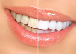 Tooth Whitening brig
