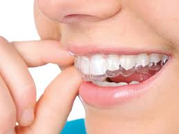 INVISALIGN or Clear