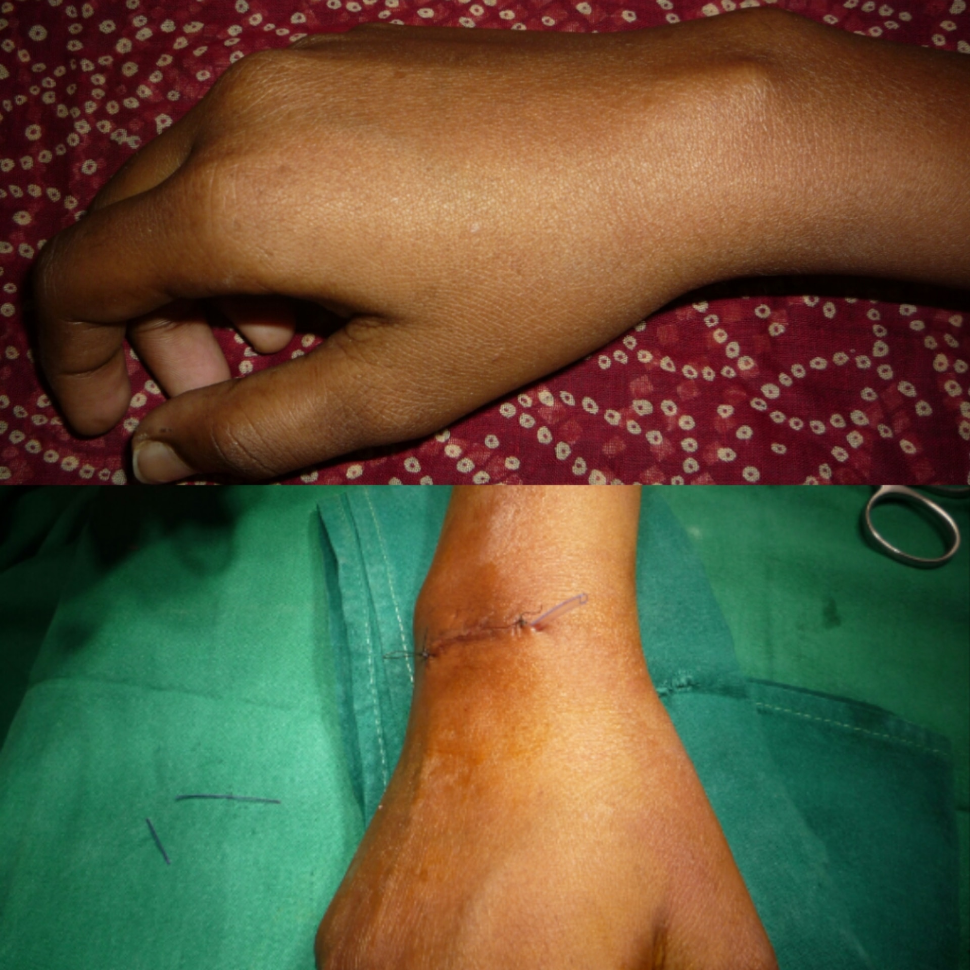 EXCISION OF GANGLION