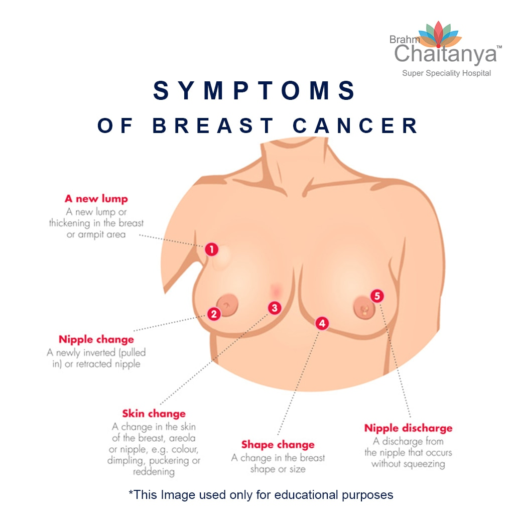 Signs Symptoms Of Breast Cancer 1 Lump In Breast 80 Hard