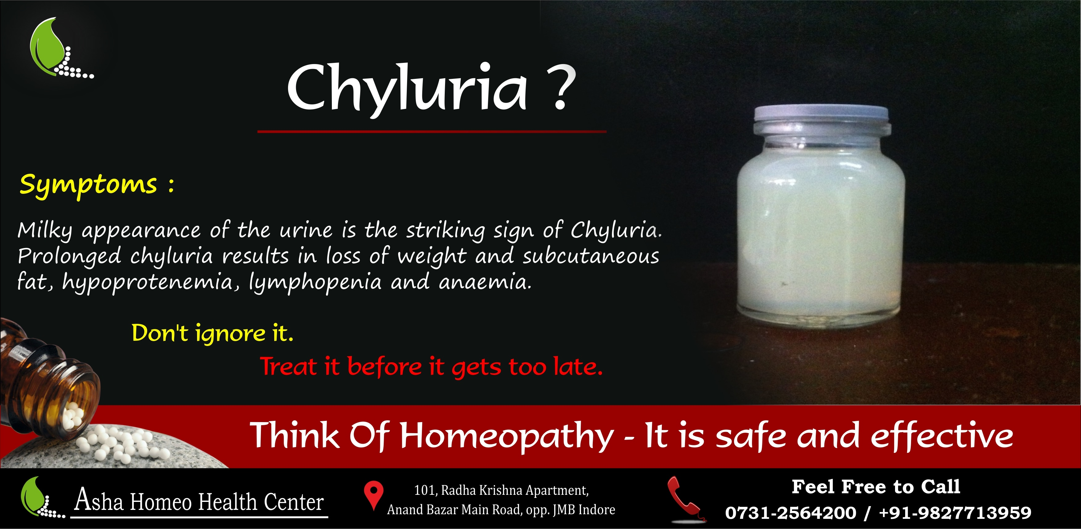 Chyluria Definition: Chyluria is a morbid condition in which
