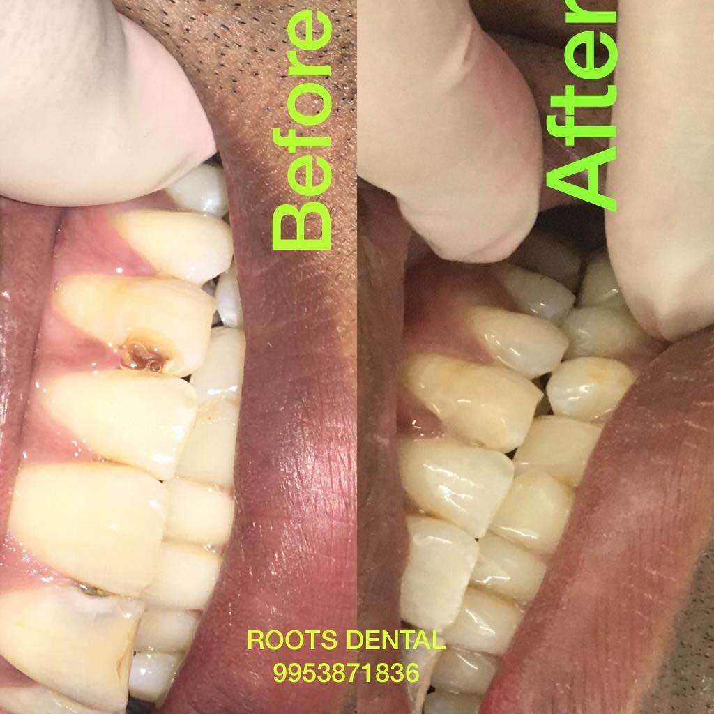 Best Dental Treatment | Best Dentist Near Me | Best Dental