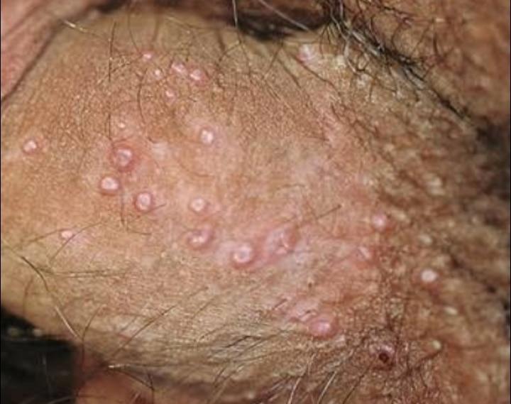 hpv small genital warts