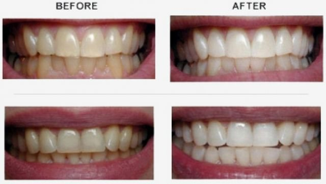 teeth scaling and polishing - by Face Dental Hospital, Hyderabad