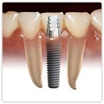 Dental Implants are artificial devices used to replace missing teeth. Implants come in many different sizes and shapes and they are placed into the bone to act as support for a prosthetic crown. These are the most modern method of replacing - by Mega Dental Clinic, Hyderabad