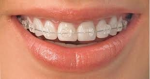 Now get Braces fixed for a cheaper price all over the city . Smile all the way now !  - by Mega Dental Clinic, Hyderabad