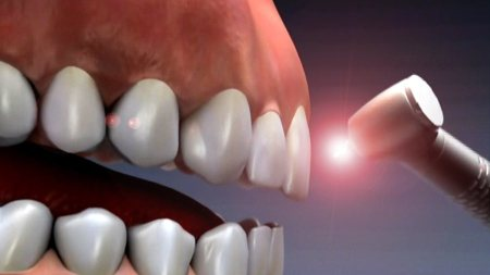 Laser Dentistry Clinic at affordable prices. - by Dr Kogantis Dental Hospital, Vishakhapatnam