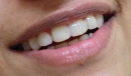 Smile esthetics improved drastically with the use of composite veneers - by Dental Aura, Hyderabad