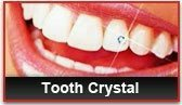 Tooth jewellary - by PERFECT DENTAL HOSPITAL, Udaipur