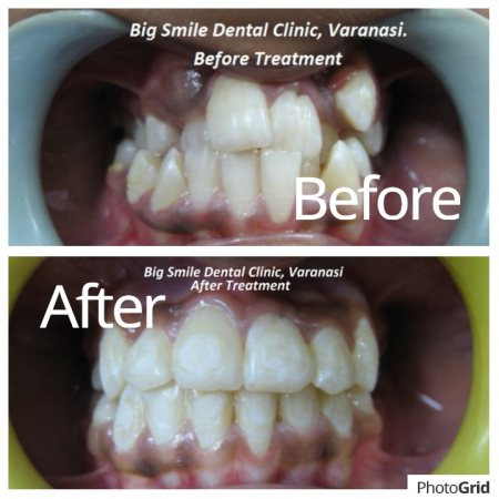 Fix Orthodontic Treatment.  Before and After the treatment.  - by Big Smile Dental Clinic, Varanasi