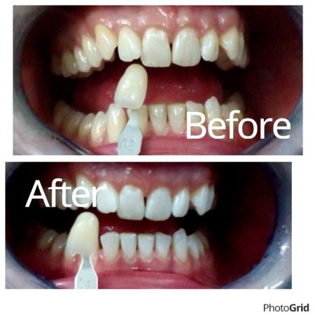 Teeth Whitening  Before and After the treatment.  - by Big Smile Dental Clinic, Varanasi