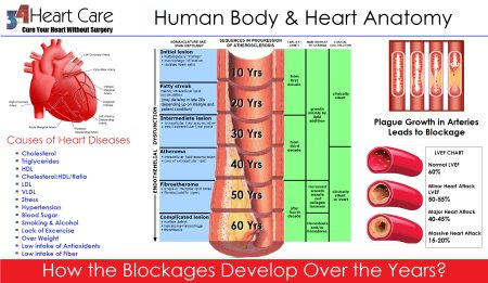 Coronary Artery Blockage and Human Age  As we humans grow so our body but after certain age when our body growth limits then any unhealthy life style can result in unhealthy results. Starting having blockages in Coronary Arteries of Heart i - by 34 Heart Care - Best Non Invasive Treatment Clinic for Heart Diseases, Delhi