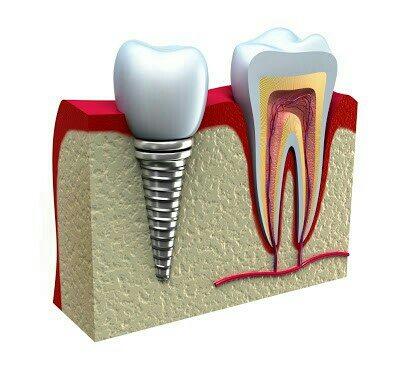 Dental implant special offers for senior citizens