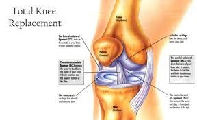 Knee Replacement Surgeon at North Delhi- Dr. Anil Raheja is a trusted Orthopedist in Delhi, rich experience of over 10000 Surgeries. - by Knee & Hip Joint Replacement | Raheja Clinic Delhi, Delhi