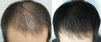 PRP  treatment for hair is now Rs.2500 per session - by Dr Avadootha Kiran Kumar, Hyderabad