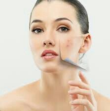 Best acne, scars treatment in  Ramdaspeth. Call for an appointment for any skin related problems.
