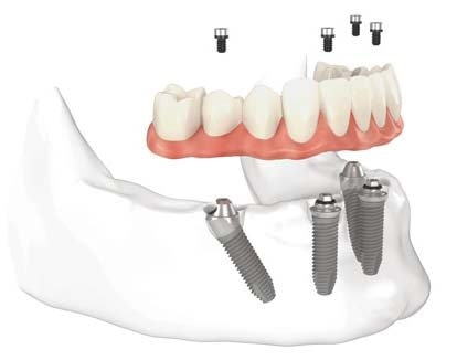 All on 4 dental implants done with complete care in dental clinic in Chennai madipakkam