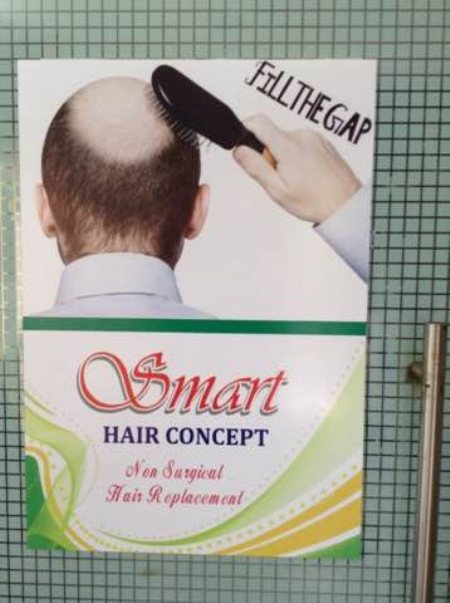 We are into non surgical replacement in Hyderabad - by Smart Hair & Beauty, Khairtabad Hyderabad