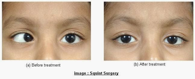 Having surgery for a squint   If other treatments are unsuccessful, surgery may be needed to correct a squint.  Surgery can be used to: improve the alignment of the eyes (and therefore their appearance) help the eyes work together   The ope - by Foresight Eye Centre, Delhi