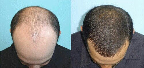 Best Hair transplant clinic indore - by Innovation Care, Indore