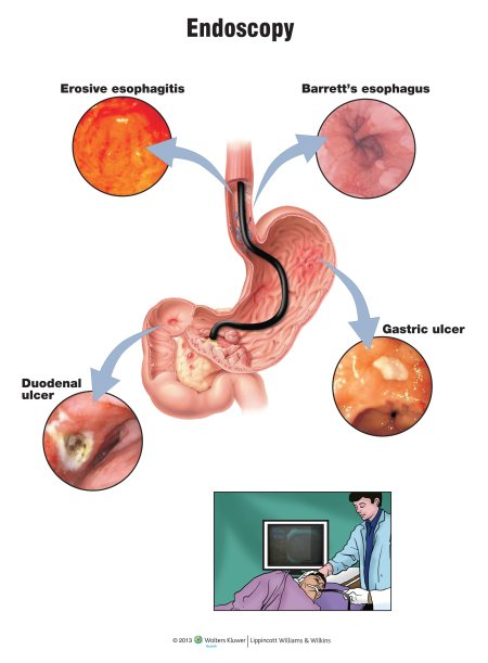 UGI Endoscopy - by Dr Vineet Chauhan, Agra