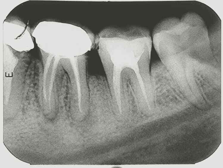 RCT , root canal treatment  - by Saha Dental Clinic, Kolkata