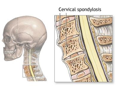 Cervical Spondylosis is very common nowadays. Medicines can cure but only for few period of time. Cure it completely by Natural Treatments.  Contact us now. For more info: http://reliefwithnature.com/pages/Cervical-Spondylosis/556729124ec0a40d3cda055f  Sai Joint and Pain Clinic - Treatment for Cervical Spondylosis