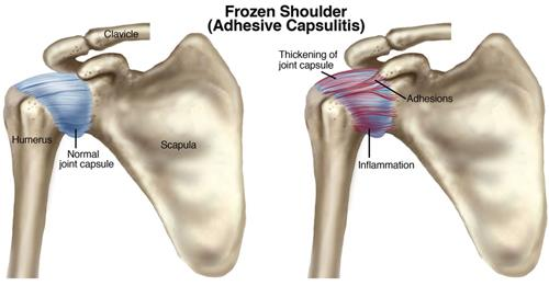 Frozen Shoulder is very common nowadays. Medicines can cure but only for few period of time. Cure it completely by Natural Treatments.  Contact us now. For more info: http://reliefwithnature.com/pages/Frozen-Shoulder/5567292a4ec0a40d3cda057e  Sai Joint and Pain Clinic - Treatment for Frozen Shoulder