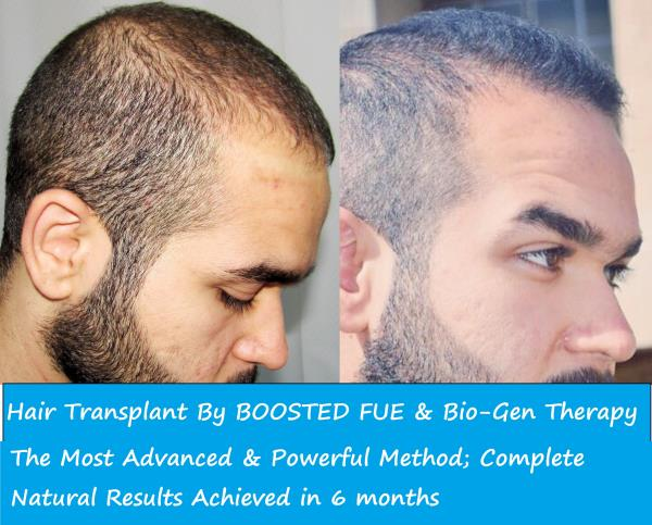 Are you suffering from continuous Hair Loss? People started calling you 'Bald Uncle'? Don't worry. Contact us now.  For more info: http://dermalife.co.in/  Dermalife - Hair Transplant in Green Park, Delhi
