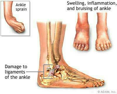 Ochre Physiotherapy clinic having special rehabilitation technique for ankle sprain and muscle weakness.  There arefour phases of ankle rehabilitation:  1.Manage pain and swelling 2.Restore range of motion 3.Begin muscle strengthening 4.Re - by OCHRE Fitness & Physio Clinic, Sivakasi