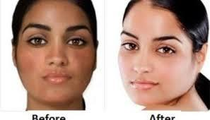 skin care solution in malleshwaram  - by Dg Clinic, Bangalore