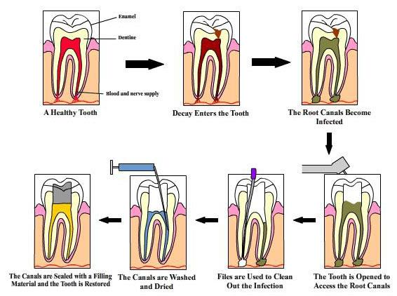 This image shows how a caries progresses and shows how a root canal is done