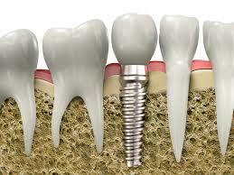 Dental Implant in Central Delhi . - by Muskan Dental Care, West Delhi