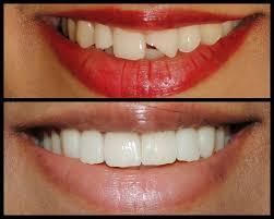 smile desinging - by Vedantam a Group of Dental Clinic, Raipur