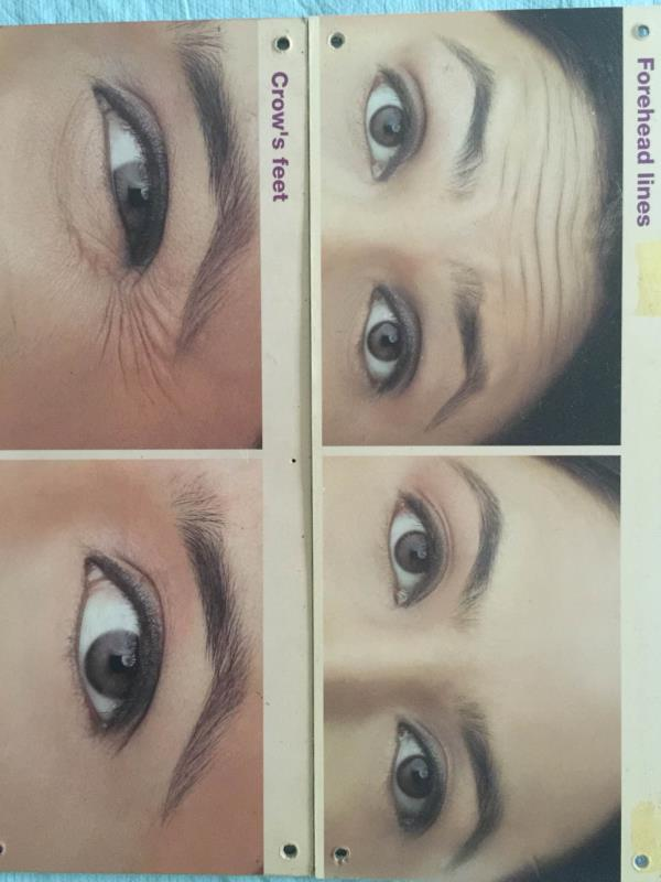 This is good examples of action of Botox It shows softening of facial lines  - by American Laser Clinic, C-123,GK one ,New Delhi