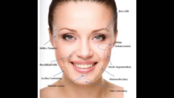 A filler can be used to correct lots of ageing lines Safely. The results are immediate. Its for men and women 🌹 - by American Laser Clinic, C-123,GK one ,New Delhi
