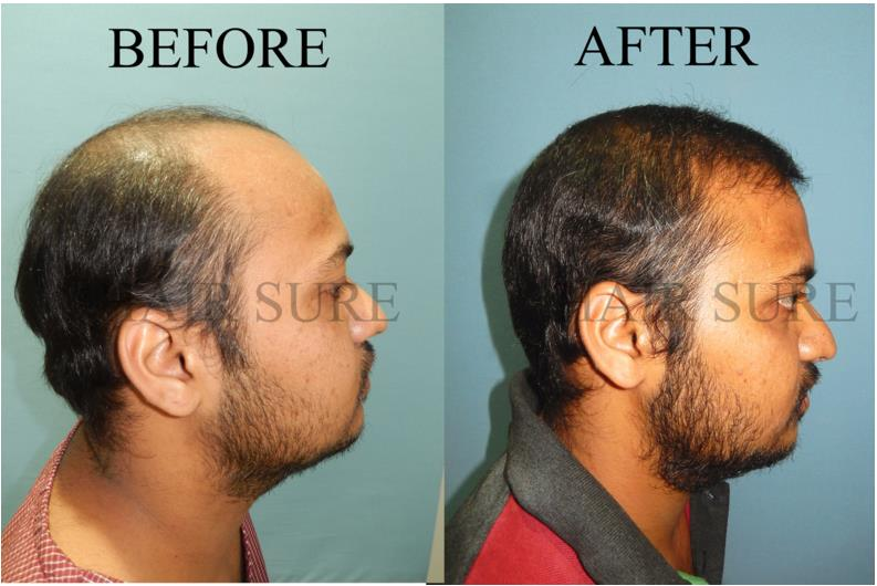 Fue hair transplant is the proven surgery to get your hair back, if you looking for this surgery  then please consult Hair Sure Hair Transplantation Centre. we are the number 1 Hair Transplantation Centre in Hyderabad - by Hair Sure Hair Transplant Centre, Hyderabad, Telangana
