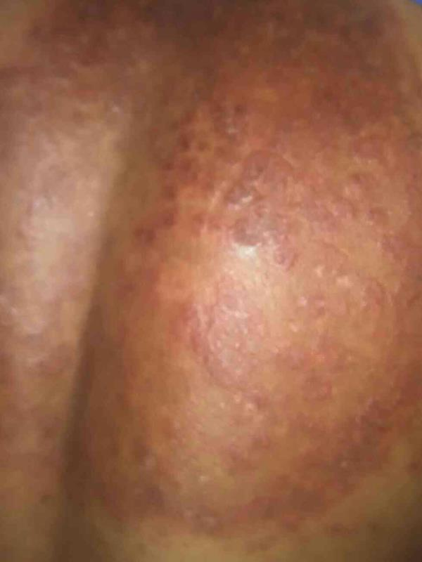 fungal infection treated with steroids and the results