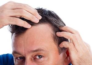 In a hair transplant surgery, doctorss remove hair from the back and/or sides of the head and put it at the balding area of the head, individual hair follicles one-by-one.  Enhance Clinics - Best Hair Loss Clinic in Mumbai