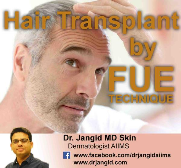 Hair Transplant in J-Block Saket . Must visit Dr.Jangid.  Contact - 9999557272 / 9266555500