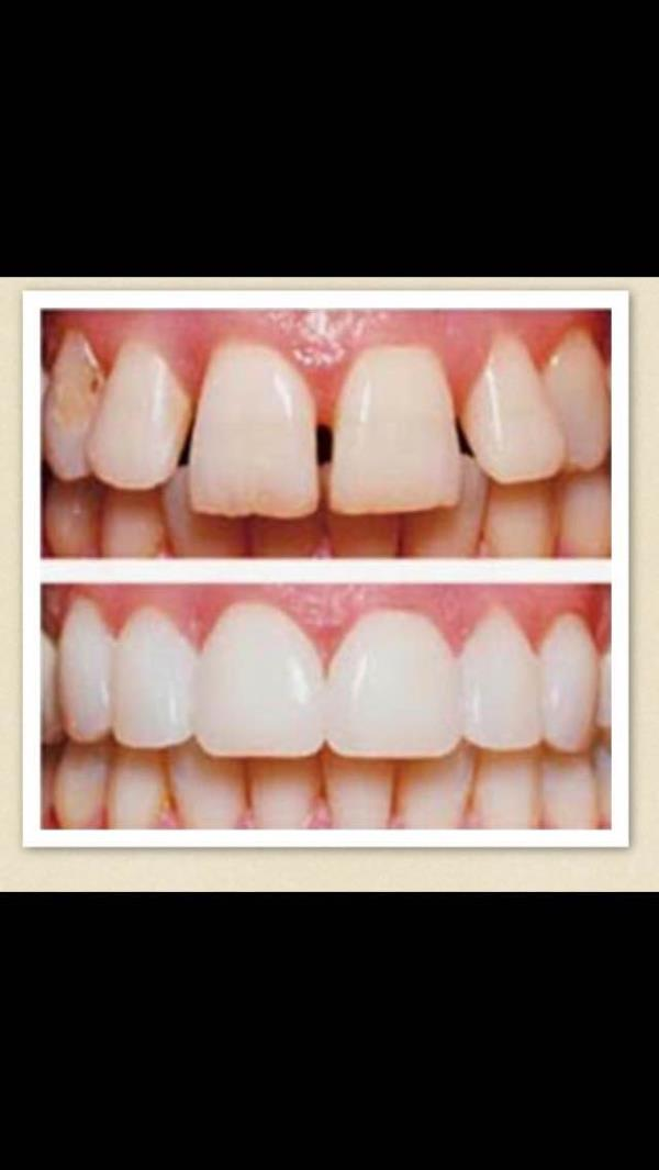 Dental veneers/porcelain laminates give teeth natural appearance , provides perfect shape, colour and size . Laminates prevents stains also
