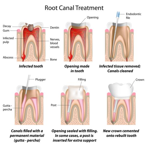 Rootcanal Treatment in MMDA # Rootcanal Treatment in MMDA  A root canal is a treatment to repair and save a badly damaged or infected tooth. The procedure involves removing the damaged area of the tooth (the pulp), cleaning and disinfecting it and then filling and sealing it. The common causes affecting the pulp are a cracked tooth, a deep cavity, repeated dental treatment to the tooth or trauma. The term