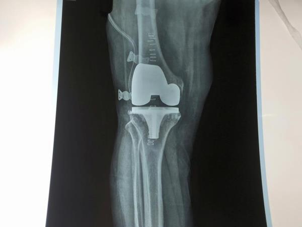 Knee Replacement Surgery in Uttam Nagar  Knee Problems are very common nowadays. Visit our Hospital and get consultation regarding Knee Problem and Knee Surgery.  For more details http://mrrmhospital.com/ - by Mata Roop Rani Maggo Hospital, New Delhi