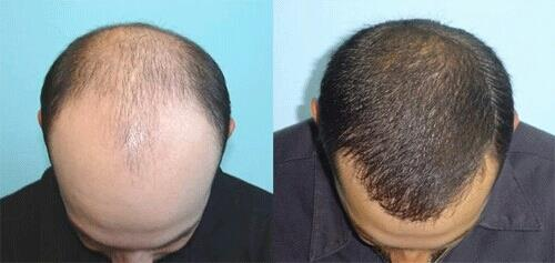 HAIR TRANSPLANTATION  HomeServicesHair Transplantation  FOLLICULAR UNIT EXTRACTION OR FUE HARVESTING  With Follicular Unit Extraction or FUE harvesting, individual follicular units containing 1 to 4 hairs are removed under local anesthesia. - by Cochin Hair Transplantation, Ernakulam