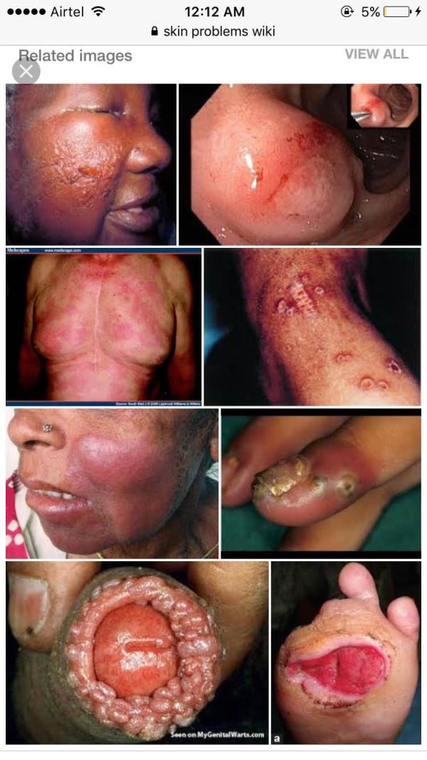 Skin specialist in Uttam Nagar  DR. PRAKASH KHUTE (MBBS MD AIIMS ) senior dermatologist .. Infection of the skin is distinguished from dermatitis, which is inflammation of the skin, but a skin infection can result in skin inflammation. Skin - by Mata Roop Rani Maggo Hospital, New Delhi
